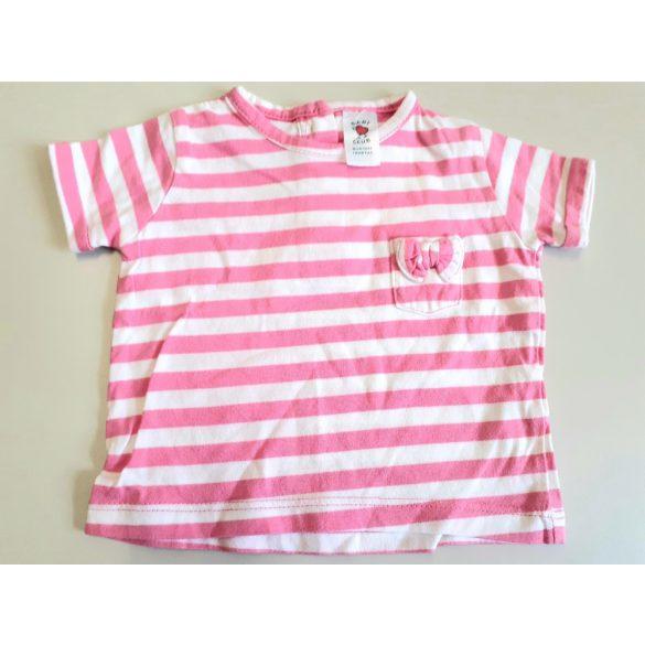 Baby Club rózsaszín csíkos pamut póló